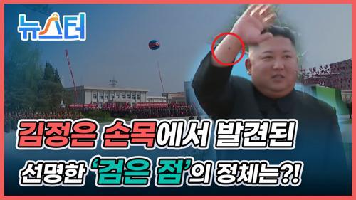 건재 과시하며 나타났지만 여전히 계속되는 설... 이번엔 김정은 손목에 수상한 점 포착?! 이미지