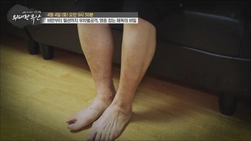 비만부터 혈관까지 무차별공격, 염증 잡는 해독의 비밀_위대한 유산 74회 예고