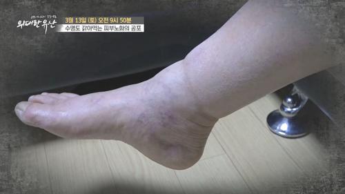 수명도 갉아먹는 피부노화의 공포_위대한 유산 123회 예고 TV CHOSUN 210313 방송