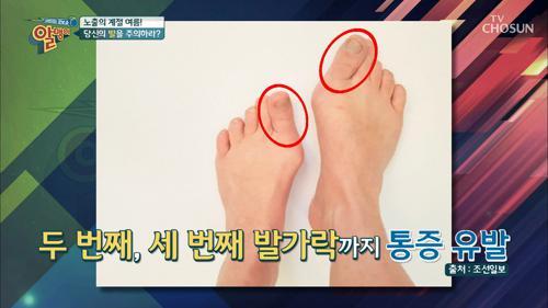 당신의 '발'을 주의하라?