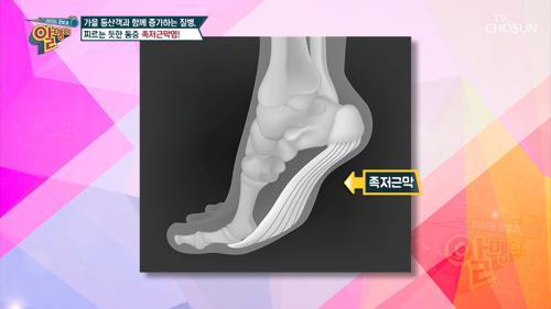 찌르는 듯한 통증 『족저근막염』 #광고포함