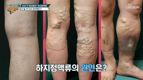 끔찍한 합병증을 유발하는 「하지정맥류」 #광고포함