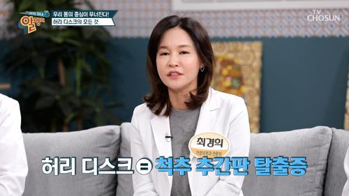 우리 몸의 중심!! 허리가 무너지면 건강이 무너진다☠ TV CHOSUN 20210228 방송