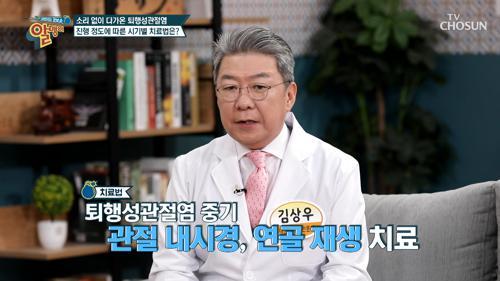 『퇴행성관절염』 진행 상태에 따라 다른 치료법! TV CHOSUN 20210328 방송