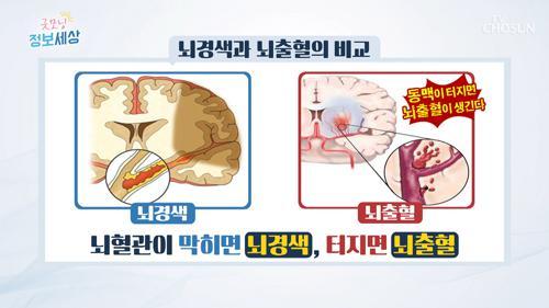 작지만 중요한 뇌! 그 혈관에 문제개 생긴다면?