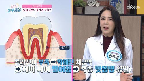 성인 발치 원인 70% ▸잇몸병◂ 콜라겐 부족 현상?!