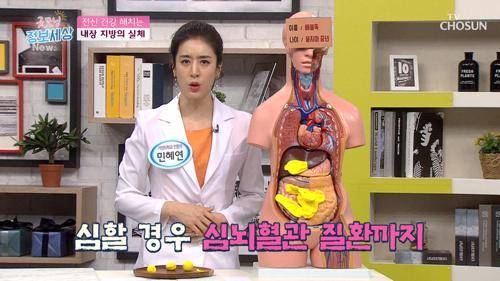 ※내장 지방의 실체※ 간이나 췌장에도 지방 축적?!