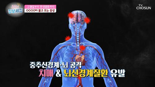 어느 순간 펑~! 수면부족이 불러오는 '이것' #광고포함
