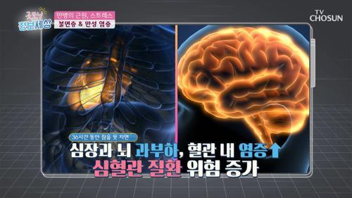 (충격) 불면증 만성화되면 암 유발 가능성 ↑ #광고포함
