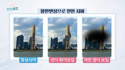 실명 부르는 무서운 질병 '황반변성' #광고포함