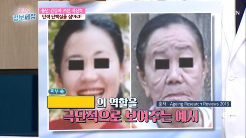 (충격😱) 한순간에 노인으로 변한 20대 여성 #광고포함