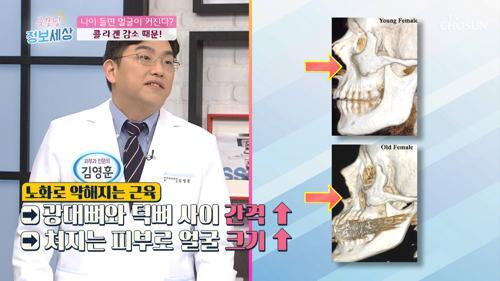 얼굴이 커지는 이유!? '○○○' 감소 원인 TV CHOSUN 20210112 방송