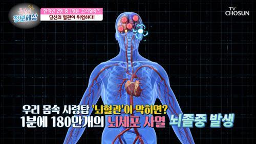 혈관이 위험하다🚨 증상 없이 나타나는 혈관질환  TV CHOSUN 210302 방송