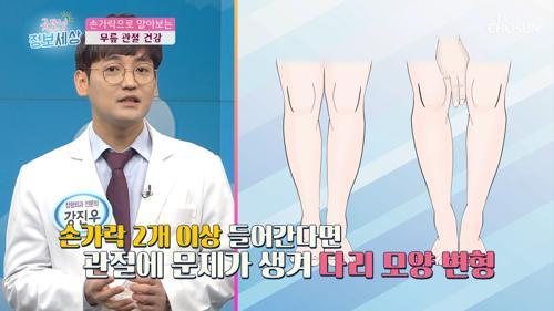 다리 모양으로 알아보는 무릎 관절 건강↗ TV CHOSUN 210304 방송