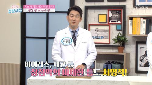 전신 건강을 해치는 장 독소!! 누수가 된다면?!😱 TV CHOSUN 210421 방송