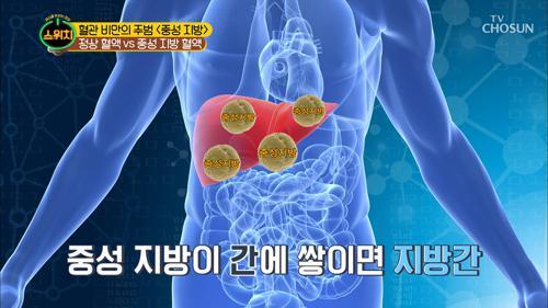 어혈→혈관 비만 부르는 주범! 중성지방