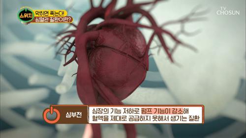좁아진 혈관이 산소 부족을 일으켜 심혈관이 위험하다!!