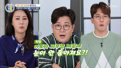 아토피 피부염 →  안구질환을 유발한다?! #광고포함