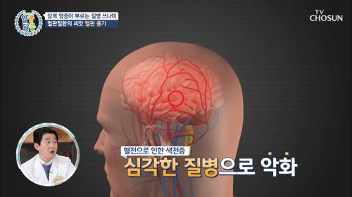 잠복염증이 부르는 3가지의 질병 쓰나미 TV CHOSUN 20210204 방송