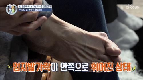 심한 통증과 발 변형 부르는 「무지 외반증」 TV CHOSUN 20210218 방송