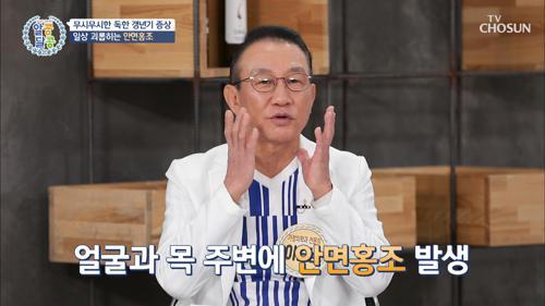 긴급 수배🚨 독한 갱년기 주범 TOP3 TV CHOSUN 20210318 방송