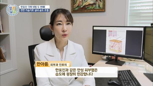 '한포진' 고통에서 벗어날 수 있는 방법 TV CHOSUN 20210415 방송