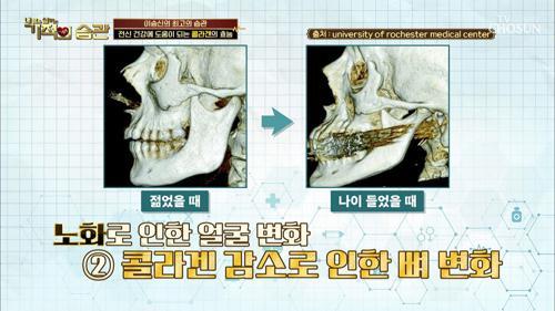 나이가 들수록 얼굴형이 바뀐다!! ★콜라겐의 중요성★