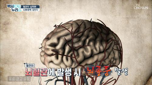 국내 사망률 1위 『뇌졸중』 이란?🧠