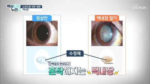 노안으로 인한 안 질환 『백내장과 망막박리』 #광고포함