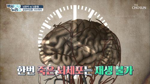 겨울철 많이 발생하는 『뇌경색·뇌출혈』