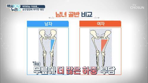 골관절염 발생률 높이는 '연골 두께 차이' #광고포함