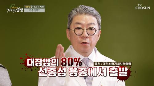 평소 소홀한 장관리가 대장암의 싹을 키운다?! TV CHOSUN 20210529 방송