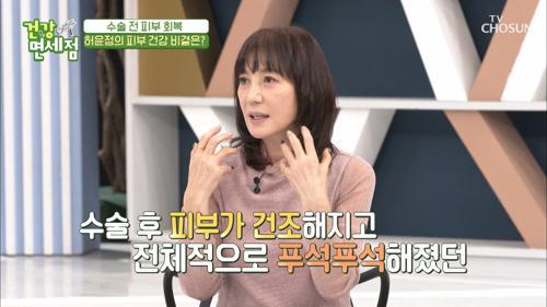 배우 허윤정이 수술 후 피부를 위해 먹은 ❛이것❜의 정체는?! V CHOSUN 20210509 방송