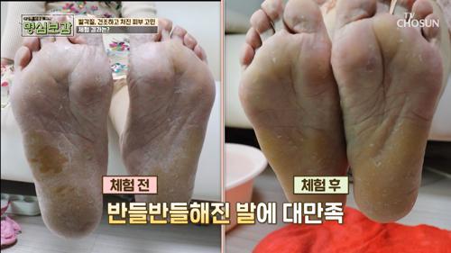 ❛이것❜으로 환절기 피부 고민 타파-★ #광고포함