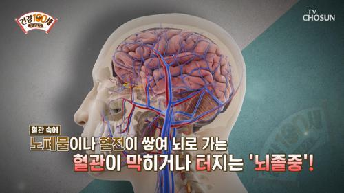 소리 없이 다가오는 '사망률 1위' 뇌졸중 이란?🧠