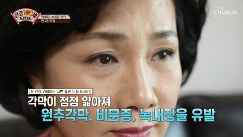 백내장·녹내장의 원인이 되는 「눈 비비는 습관」 TV CHOSUN 210308 방송