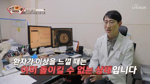 평범한 일상을 악몽으로 바꾼 원인 ▶뇌동맥류◀ TV CHOSUN 210503 방송