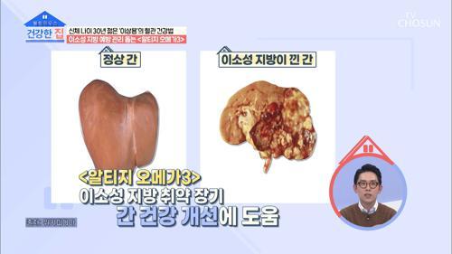 혈관·간 건강 도움주는 '알티지 오메가3' #광고포함