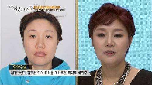 과거 모습과 싱크로율 0%, 호리병 가슴 김순란!