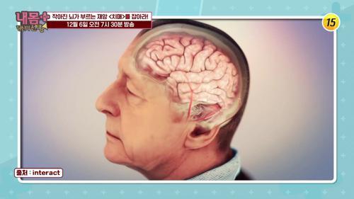 작아진 뇌가 부르는 재앙 〈치매〉를 잡아라!_내 몸 플러스 225회 예고