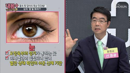 눈의 '점'을 봐라?! 몸속 독 덩어리 독살 진단법!