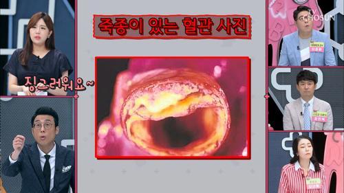 탈진한 혈관 · 죽처럼 변한 혈액?