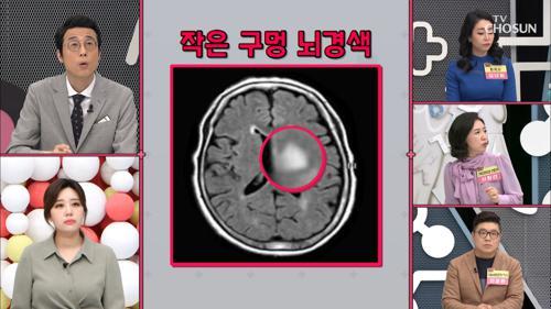 뇌에 구멍이? 치매 부르는 ※작은 구멍 뇌경색※