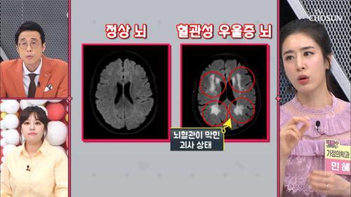 뇌 건강 무너질때 생기는 '○○○우울증'
