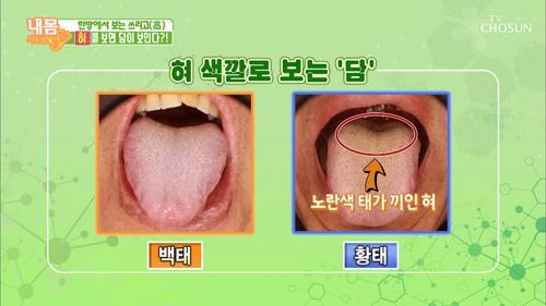 혀를 보면 담이 보인다! 혀의 모양과 색깔로 보는 건강
