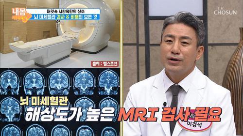 만성질환자가 아니라면, 뇌 MRI 검사 필요가 없다?