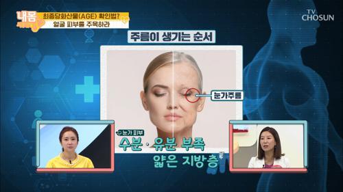 얼굴 피부 노화 ⧙눈주름⧘ 먼저 생기는 이유