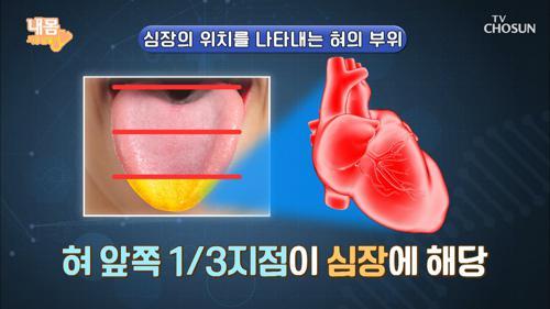 혀👅로 확인하는 ˹심장 건강 자가 진단법˼ #광고포함