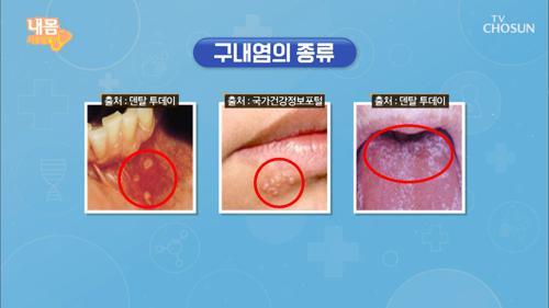 면역력 방전의 신호🚨 구내염·입병👄 TV CHOSUN 20210122 방송