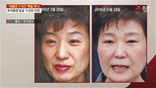 '세월호 참사' 발생 한달도 안돼 박 대통령, 성형시술 흔적 포착